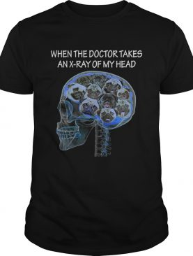 Skull pug When the doctor takes an xray of my head shirt